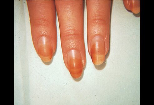 Hair, Scalp and Nail Conditions: Types, Causes and Treatments
