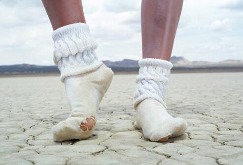 Photo of woman in socks in desert.