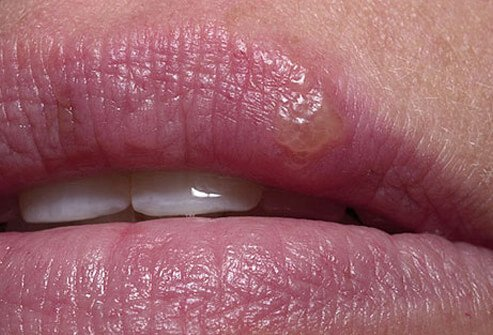Photo of cold sore.