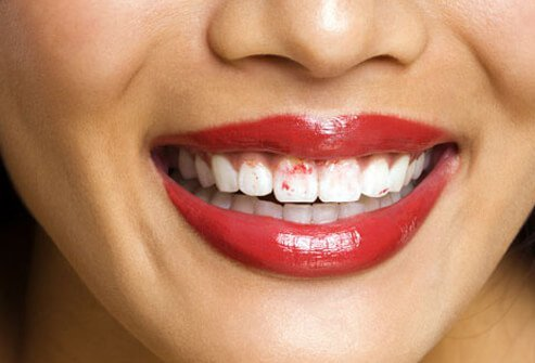 dry mouth s3 photo of smiling woman with lipstick on teeth 20 Signs of a Careless Girl 😣😥😡😠