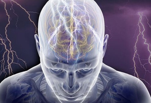 Epilepsy is a group of related disorders in the brain's electrical systems that are characterized by a tendency to cause recurrent seizures.
