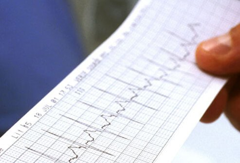 Photo of an electrocardiogram reading.