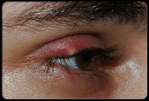Common Eye Problems And Infections