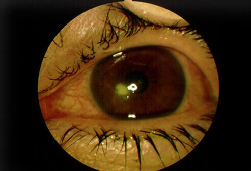 A patient suffering from a corneal ulcer shows a white area in the cornea, the clear structure overlying the pupil and iris, the colored part of the eye.
