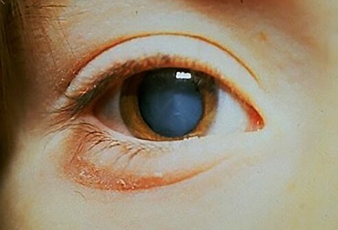 The eye of this patient with cataracts shows a clouding of the lens of the eye, impairing normal vision.