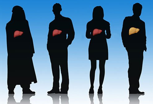 Fatty liver disease is more common than you might realize.
