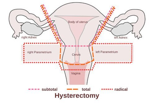 A hysterectomy may affect sexual function in women.