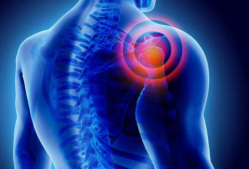 It is pain and stiffness in your shoulder that happens slowly.
