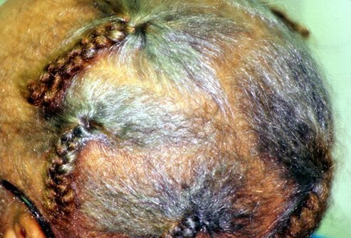 An elderly woman has traction alopecia resulting from years of tight braids.