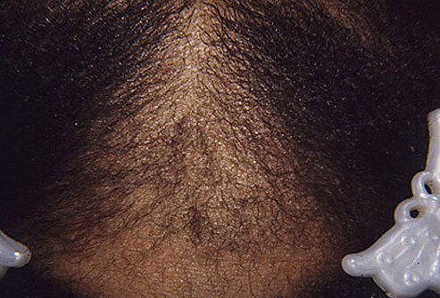 Pulling hair too tight can damage hair roots and cause hair to break or fall out.