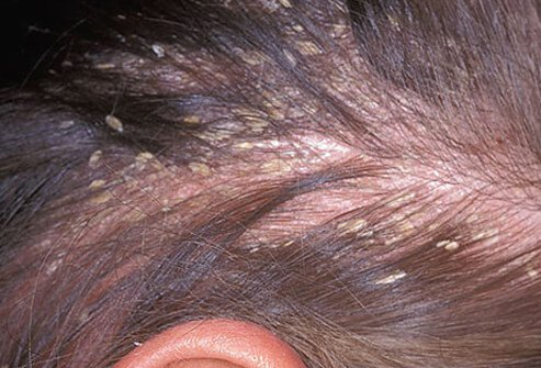 topical steroids for hair loss