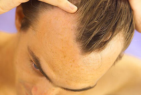 Your Hair And Scalp Can Say A Lot About Your Health