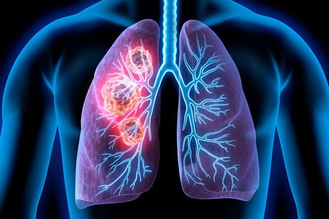 Air pollution can cause lung cancer.