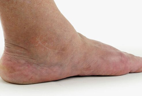 A foot with a swollen ankle, a symptom of heart disease that may resist treatment.
