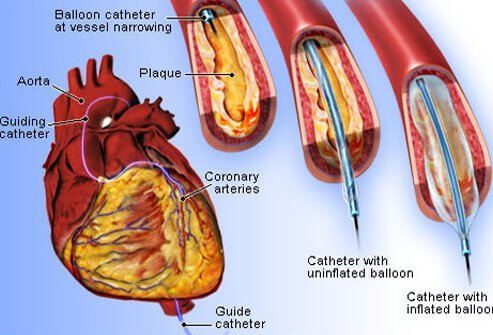 Heart disease symptoms signs and causes what are some of the procedures performed to treat heart disease ccuart Images