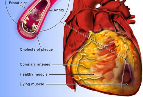 heart disease: symptoms, signs, and causes, Skeleton