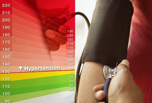 Photo of a hypertension chart.