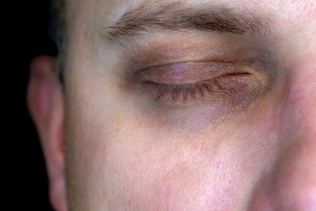 Alcohol use may give you dark circles under your eyes.