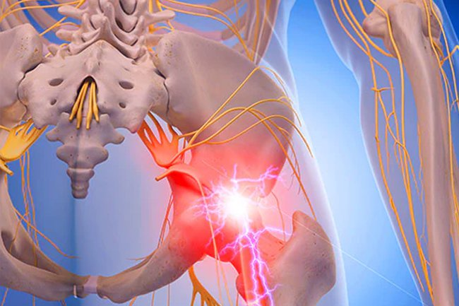 A slipped disk or a bone spur can press on sciatic nerves and cause pain.