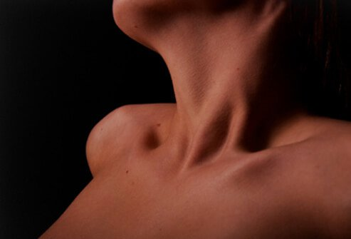 Hyperthyroidism is a medical condition that results from an excess of thyroid hormone in the blood.