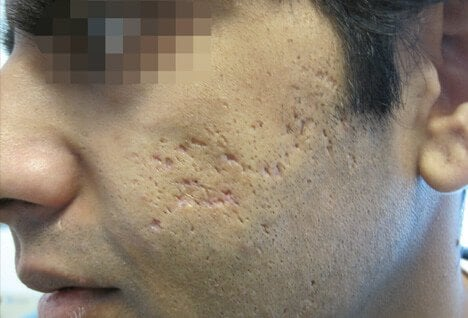 One of the most difficult forms of acne to treat are ice-pick stars, which take the form of deep, pitted lesions.