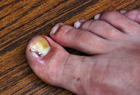 Foot Problems Pictures Slideshow: Ingrown Toenails