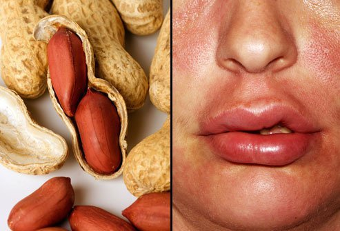Peanuts are one of the most common food allergies.