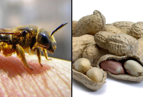 Anaphylaxis is a potentially fatal allergic reaction to items such as penicillin, peanuts and insect stings which may lead to a severe drop in blood pressure.