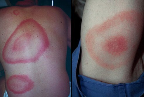 Lyme disease is a tick-borne illness caused by bacteria.