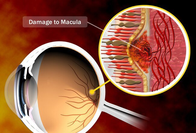 The macula is a part of the retina in the back of the eye.