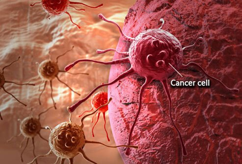 Approximately 1.5 million new cancer cases are diagnosed in America every year.