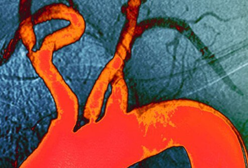 Angiogram of atheroma plaque.