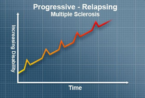 primary progressive ms and steroid treatment