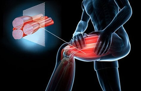 Image result for muscle cramps