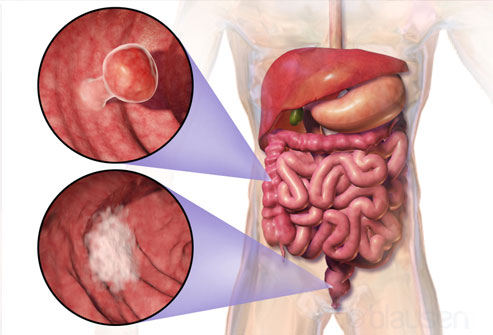 Digestive Disorders 23 Constipation Myths And Facts