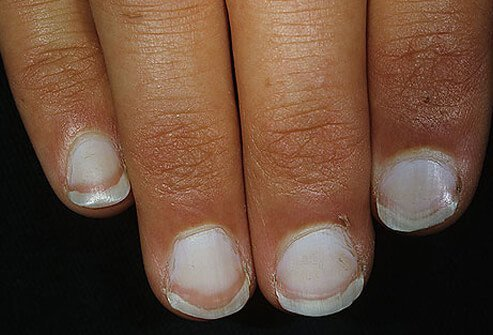 Example Of White Nails Leukonychia