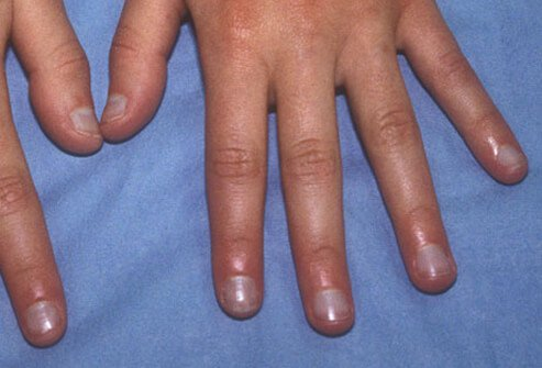 Acute cyanosis can be a sign of a medical emergency.