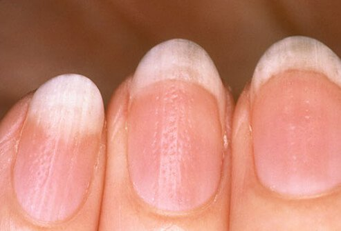 Nail pitting is a classical sign of psoriasis in the nail.
