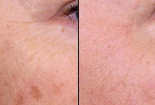 Before and after photos of nonablative laser treatment.
