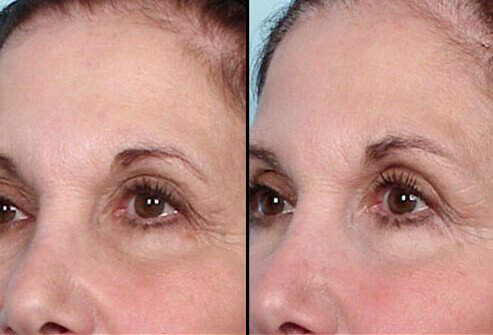 A woman before and after Thermage treatment.