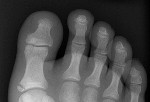 Fractures, foot. Two fractures of the proximal phalanx of the great toe. The fracture at the base is obvious, but the fracture at the head is more subtle.