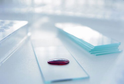 Photo of blood sample on a glass slide.