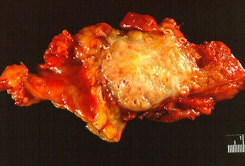 This is a gross section of a malignant tumor of the pancreas resected from the pancreatic body and tail.