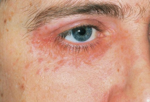 A rash around the eye may be periobital dermatitis, which can be set off from allergic reactions.