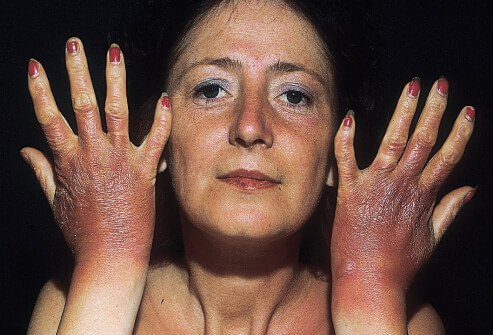 Burning and stinging can result from a phototoxic drug-induced photosensitivity.