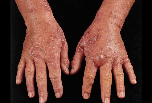 Sometimes blisters appear after a bad reaction to lime juice or other plants when they are exposed to sunlight. This is called phytophotodermatitis.