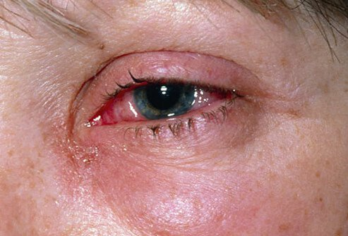 Pink Eye (Conjunctivitis) Symptoms, Causes, Treatments