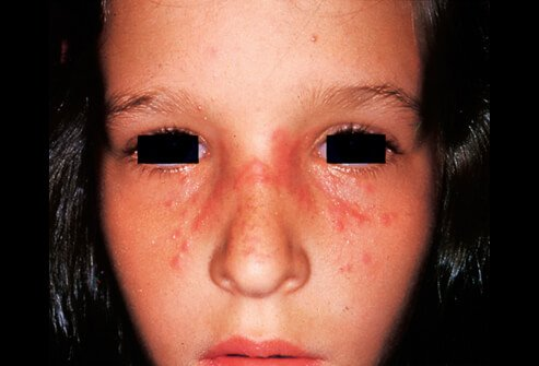 Cases of polymorphous light eruption have been known to run in families, particularly among Native Americans.
