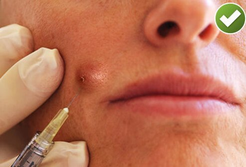 Photo of doctor injecting womans acne with corticosteroid.