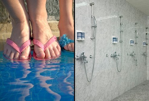 Ringworm prevention tip #2: Wear slippers or sandals in locker rooms and public pool and bathing areas.